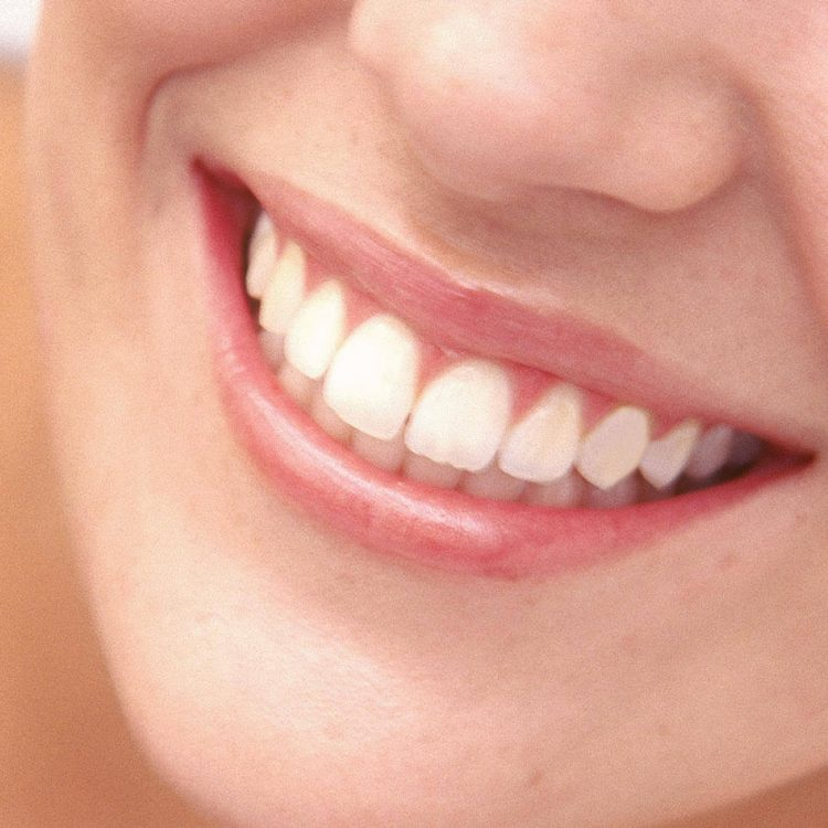Zoom Whitening Gaithersburg Dental Associates